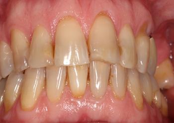 Blanchiment dentaire unitaire