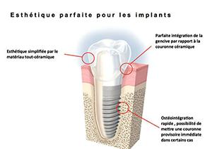 Chirurgie pré-implantaire