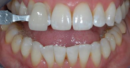Éclaircissement dentaire
