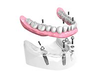 Remplacer toutes les dents